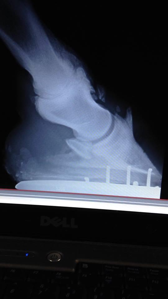 Radio du pied d'un pur-sang de 11 ans atteint d'une forme sévère d'arthrose du pied.