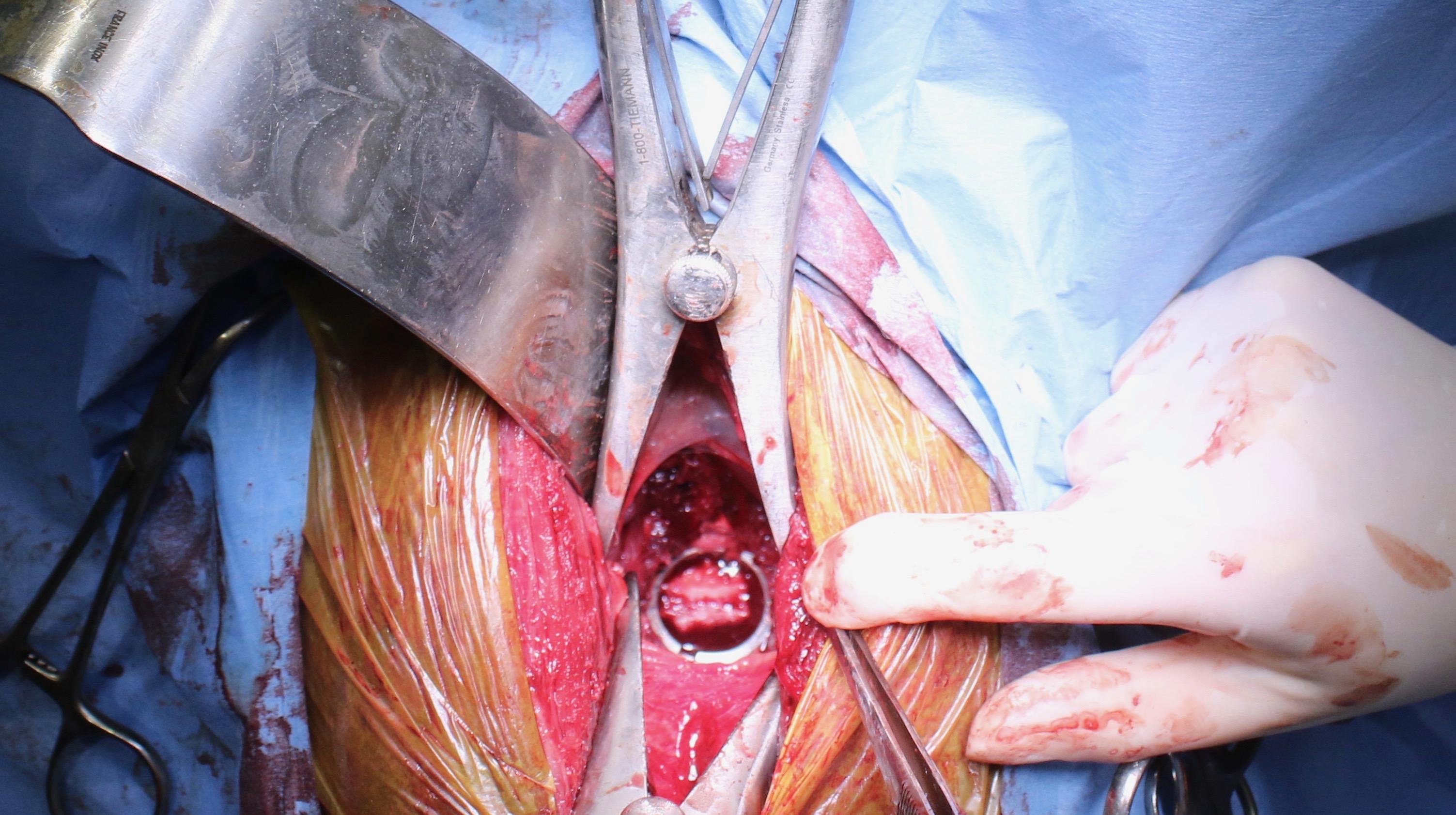 La prothèse sur les vertèbres du cheval