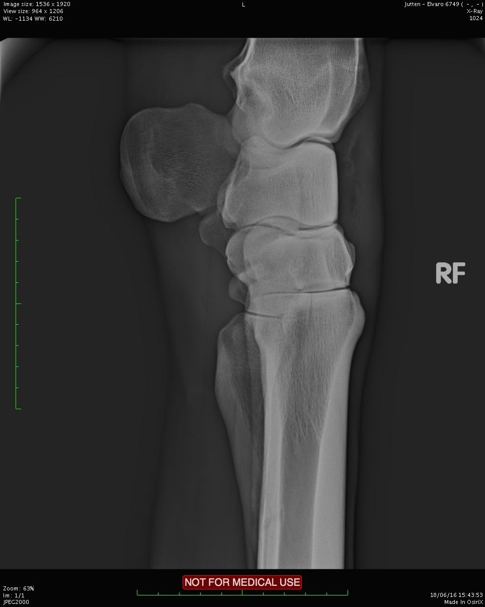 Des exemples de fractures du cheval