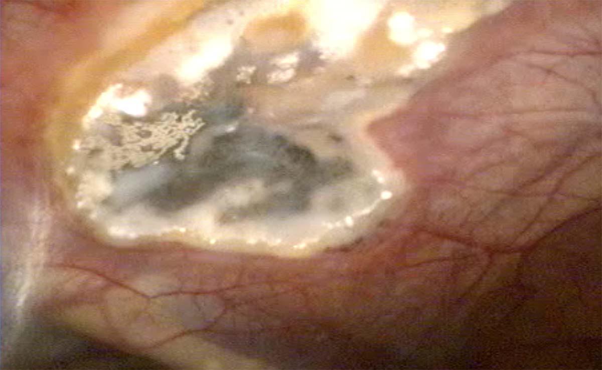 Image endoscopique d'une poche gutturale chez le cheval